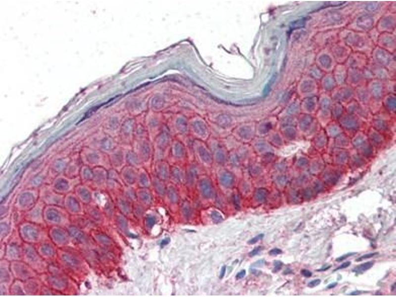 Immunohistochemistry (Paraffin-embedded Sections) (IHC (p)) image for anti-EGFR antibody (Epidermal Growth Factor Receptor) (Internal Region) (ABIN615211)