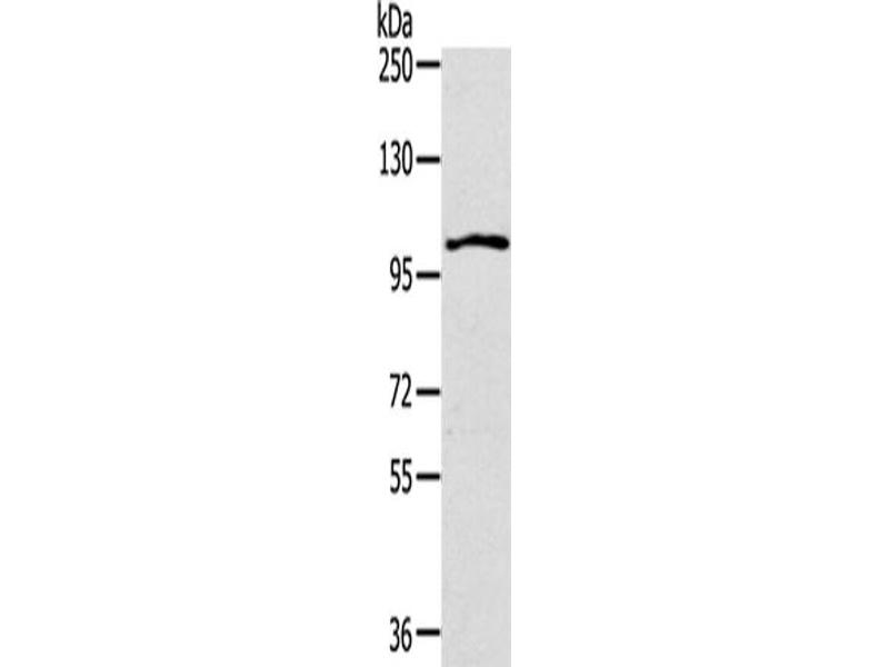 Image no. 3 for anti-Interleukin 17 Receptor A (IL17RA) antibody (ABIN2433189)
