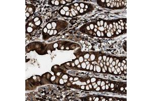 Immunohistochemistry (Paraffin-embedded Sections) (IHC (p)) image for anti-BAI1-Associated Protein 2-Like-1 (BAIAP2L1) antibody (ABIN4282989)
