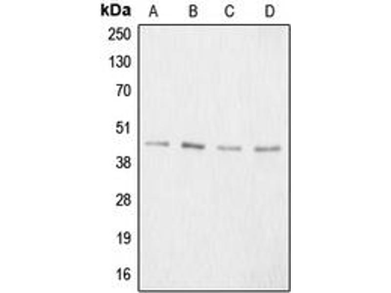 Image no. 1 for anti-Aggrecan (ACAN) (N-Term) antibody (ABIN2707311)