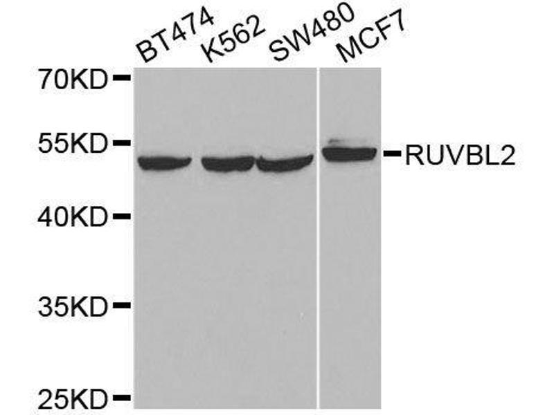 Western Blotting (WB) image for anti-RuvB-Like 2 (E. Coli) (RUVBL2) antibody (ABIN6147322)