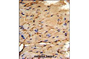 Image no. 3 for anti-phosphoprotein Enriched in Astrocytes 15 (PEA15) (AA 86-115), (C-Term) antibody (ABIN5537162)