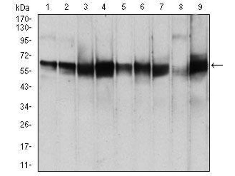 Western Blotting (WB) image for anti-3-phosphoinositide Dependent Protein Kinase-1 (PDPK1) (AA 457-556) antibody (ABIN4880931)