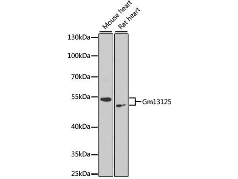 Image no. 1 for anti-GM13125 Gene Product From Transcript GM13125-RA (DSEC\GM13125) antibody (ABIN6567596)