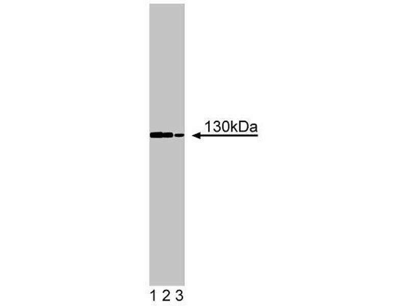 Western Blotting (WB) image for anti-FYB antibody (FYN-Binding Protein) (AA 673-783) (ABIN968266)