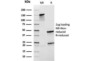 Image no. 1 for anti-Complement Component (3d/Epstein Barr Virus) Receptor 2 (CR2) (AA 44-196) antibody (ABIN6939181)