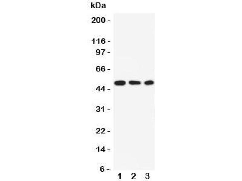 Western Blotting (WB) image for anti-SGK1 antibody (serum/glucocorticoid Regulated Kinase 1) (N-Term) (ABIN3032550)