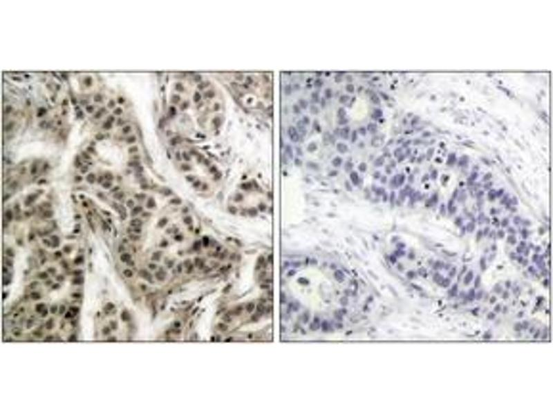 Immunohistochemistry (IHC) image for anti-NFKB1 antibody (Nuclear Factor of kappa Light Polypeptide Gene Enhancer in B-Cells 1) (pSer337) (ABIN1531920)