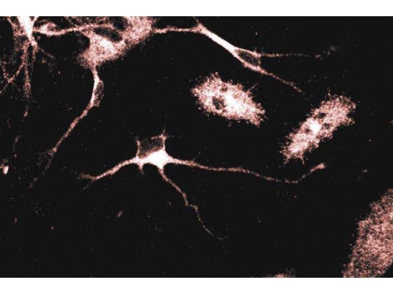 Immunofluorescence (IF) image for anti-gamma 1 Adaptin antibody (Adaptor-Related Protein Complex 1, gamma 1 Subunit) (AA 642-821) (ABIN967935)