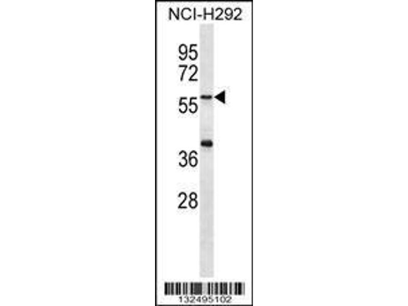 Western Blotting (WB) image for anti-Matrilin 1, Cartilage Matrix Protein (MATN1) (AA 376-405), (C-Term) antibody (ABIN656749)