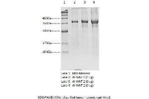 Image no. 1 for Wingless-Type MMTV Integration Site Family Member 2 (WNT2) protein (ABIN1888636)