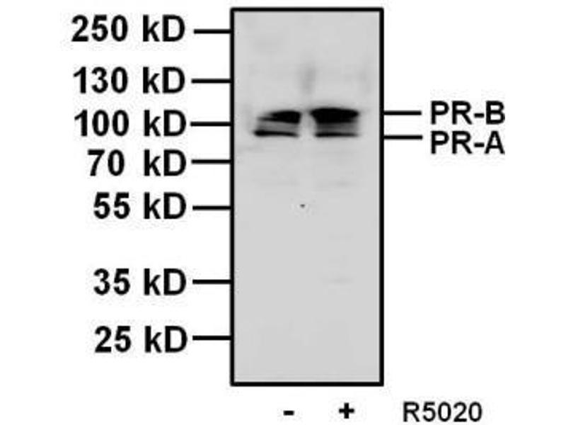 Western Blotting (WB) image for anti-Progesterone Receptor (PGR) antibody (ABIN266932)