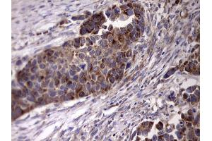 Image no. 1 for anti-Angiotensin I Converting Enzyme 2 (ACE2) (AA 18-237) antibody (ABIN2715650)