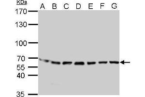 Image no. 3 for anti-Stress-Induced-phosphoprotein 1 (STIP1) (Center) antibody (ABIN2855549)