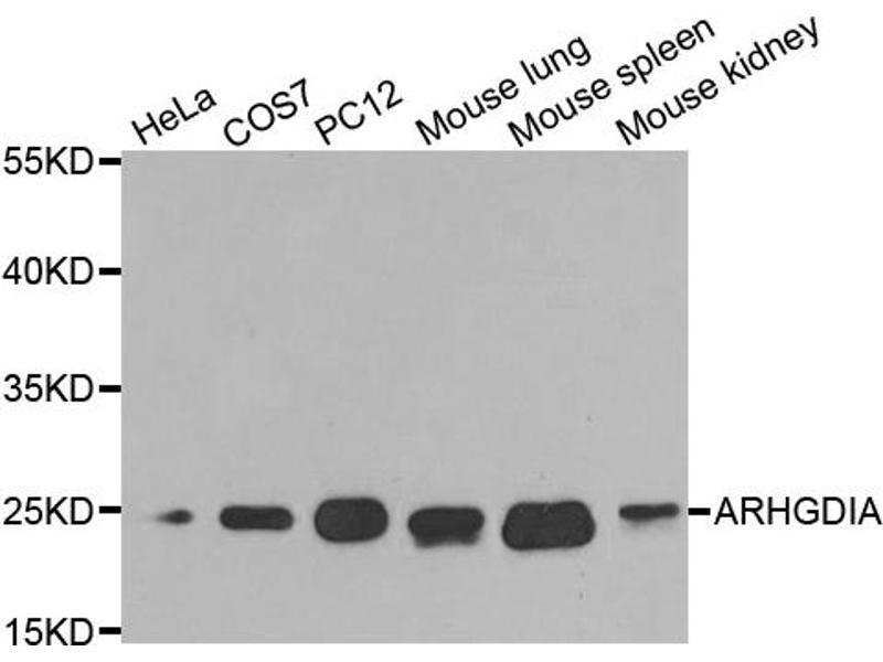 Image no. 1 for anti-rho GDP Dissociation Inhibitor (GDI) alpha (ARHGDIA) antibody (ABIN6567345)