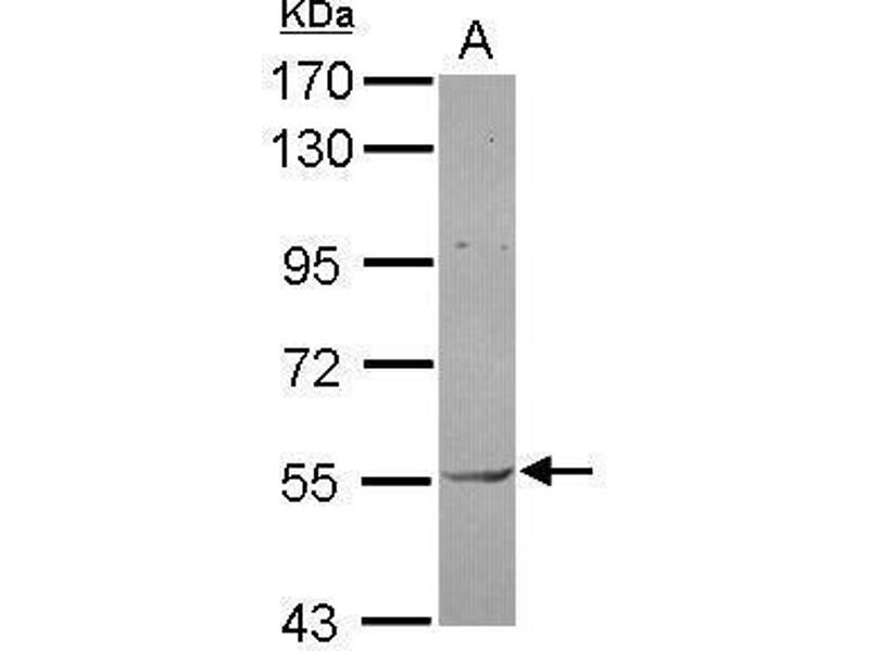 Western Blotting (WB) image for anti-AKT antibody (V-Akt Murine Thymoma Viral Oncogene Homolog 1) (Center) (ABIN2854922)