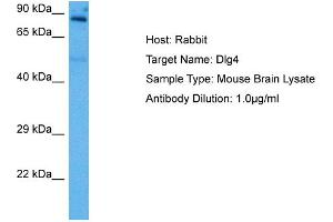 Western Blotting (WB) image for anti-Discs, Large Homolog 4 (Drosophila) (DLG4) (Middle Region) antibody (ABIN2784457)