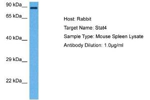Image no. 1 for anti-Signal Transducer and Activator of Transcription 4 (STAT4) (N-Term) antibody (ABIN2777897)