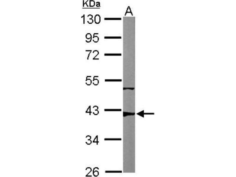 Western Blotting (WB) image for anti-RRM2B antibody (Ribonucleotide Reductase M2 B (TP53 Inducible)) (Center) (ABIN4343021)