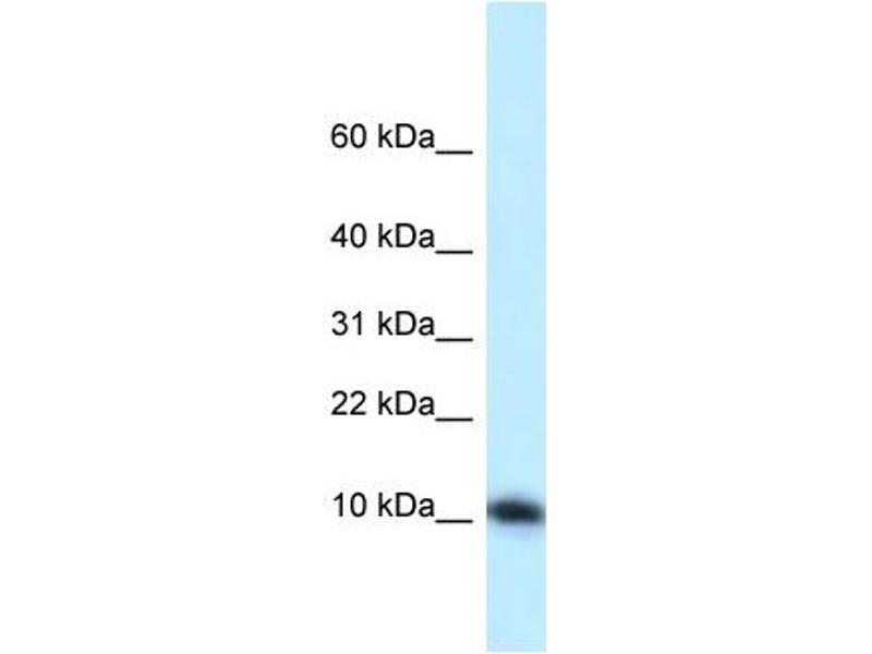 Western Blotting (WB) image for anti-Mediator Complex Subunit 21 (MED21) (N-Term) antibody (ABIN2776418)