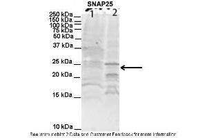 Image no. 1 for anti-Synaptosomal-Associated Protein, 25kDa (SNAP25) (C-Term) antibody (ABIN2792294)
