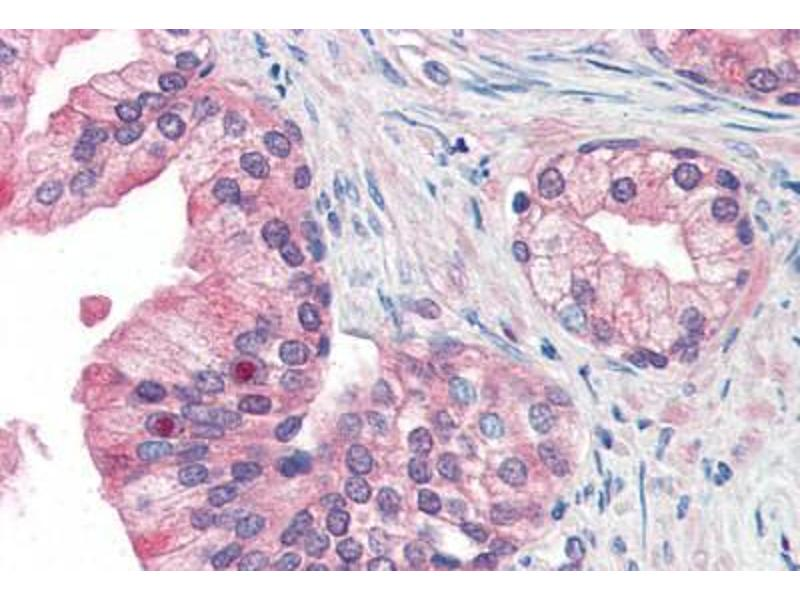 Immunohistochemistry (Paraffin-embedded Sections) (IHC (p)) image for anti-Antigen P97 (Melanoma Associated) Identified By Monoclonal Antibodies 133.2 and 96.5 (MFI2) (N-Term) antibody (ABIN351428)