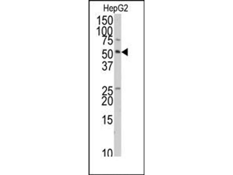 image for anti-TRAF Interacting Protein (TRAIP) (C-Term) antibody (ABIN357988)