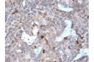 Immunohistochemistry (Paraffin-embedded Sections) (IHC (p)) image for anti-Microtubule-Associated Protein 1 Light Chain 3 beta (MAP1LC3B) (AA 1-100), (N-Term) antibody (ABIN250638)