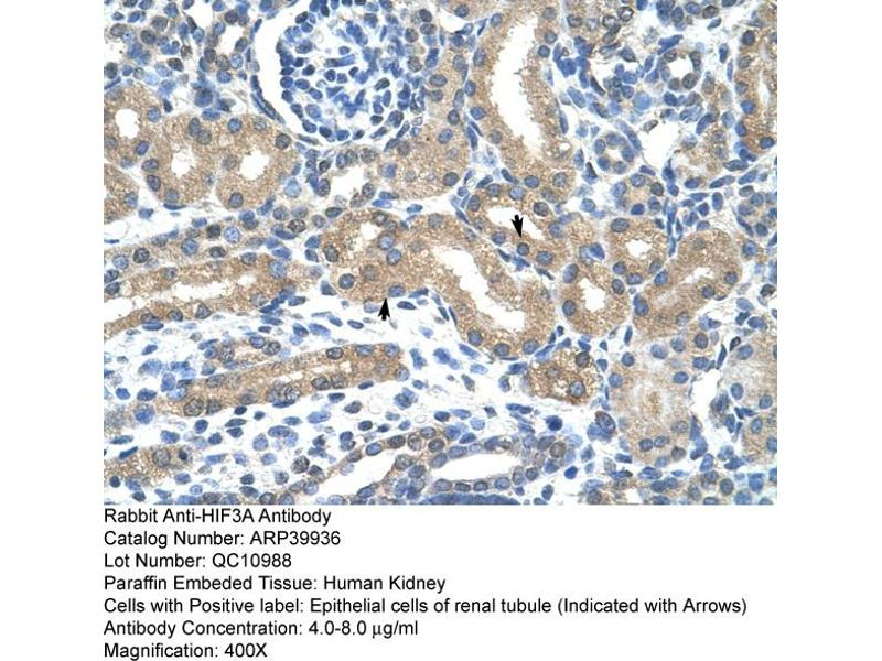 Immunohistochemistry (IHC) image for anti-Hypoxia Inducible Factor 3, alpha Subunit (HIF3A) (C-Term) antibody (ABIN183862)