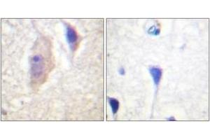 Image no. 2 for anti-Breakpoint Cluster Region (BCR) (AA 331-380), (pTyr360) antibody (ABIN1531493)