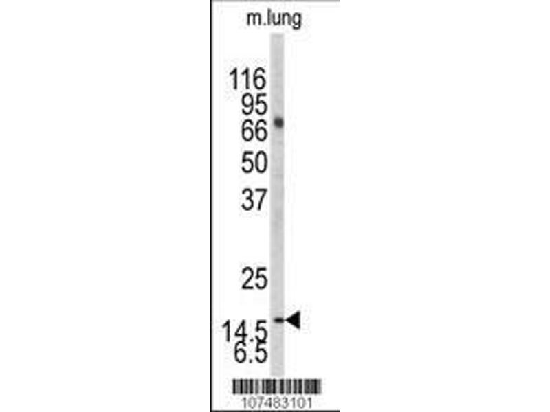 Western Blotting (WB) image for anti-LC3 (APG8A/B) (AA 23-52) antibody (ABIN388477)