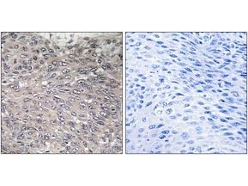 Immunohistochemistry (IHC) image for anti-Inositol 1,4,5-Trisphosphate Receptor, Type 1 (ITPR1) (AA 1566-1615), (pSer1598) antibody (ABIN1531671)