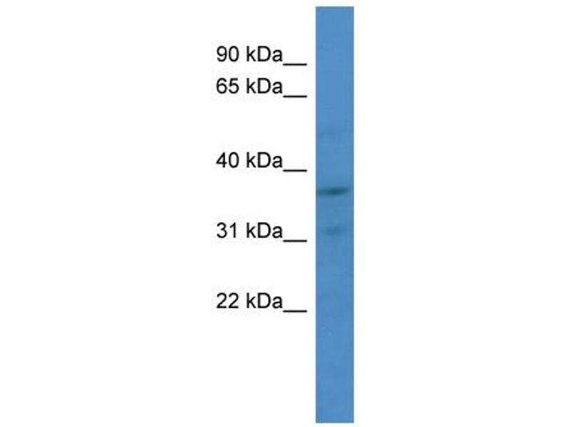 Western Blotting (WB) image for anti-Cyclin-Dependent Kinase 2 (CDK2) (Middle Region) antibody (ABIN2779325)