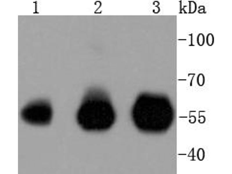 Western Blotting (WB) image for anti-Interferon Regulatory Factor 3 (IRF3) antibody (ABIN5557495)