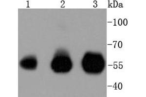 Western Blotting (WB) image for anti-Interferon Regulatory Factor 3 (IRF3) antibody (ABIN5557495)