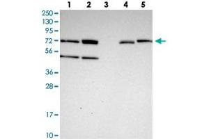 Image no. 2 for anti-Zinc Finger Protein 467 (ZNF467) antibody (ABIN5591369)