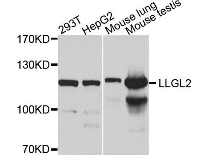 Western Blotting (WB) image for anti-Lethal Giant Larvae Homolog 2 (Drosophila) (LLGL2) antibody (ABIN2737114)