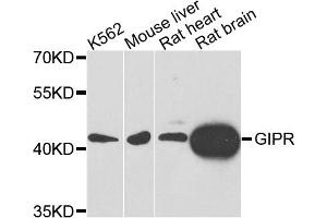 Image no. 1 for anti-Gastric Inhibitory Polypeptide Receptor (GIPR) antibody (ABIN6572025)