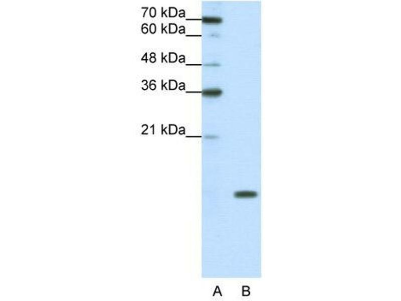Western Blotting (WB) image for anti-Small Nuclear Ribonucleoprotein D1 Polypeptide 16kDa (SNRPD1) (N-Term) antibody (ABIN2779015)