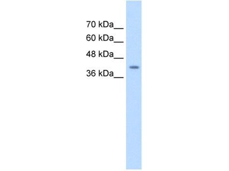 Western Blotting (WB) image for anti-serpin Peptidase Inhibitor, Clade B (Ovalbumin), Member 5 (SERPINB5) (Middle Region) antibody (ABIN2777125)