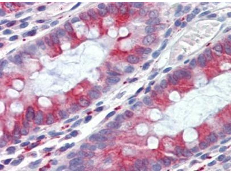 Immunohistochemistry (IHC) image for anti-TUBB antibody (Tubulin, beta) (ABIN614488)