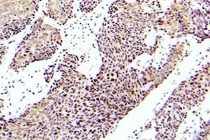 Immunohistochemistry (Paraffin-embedded Sections) (IHC (p)) image for anti-MAP3K5 antibody (Mitogen-Activated Protein Kinase Kinase Kinase 5) (pSer83) (ABIN498822)