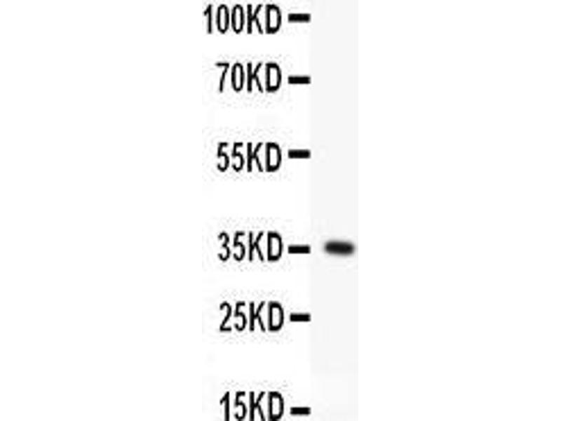 Western Blotting (WB) image for anti-Fas (TNF Receptor Superfamily, Member 6) (FAS) (AA 26-173) antibody (ABIN3042387)