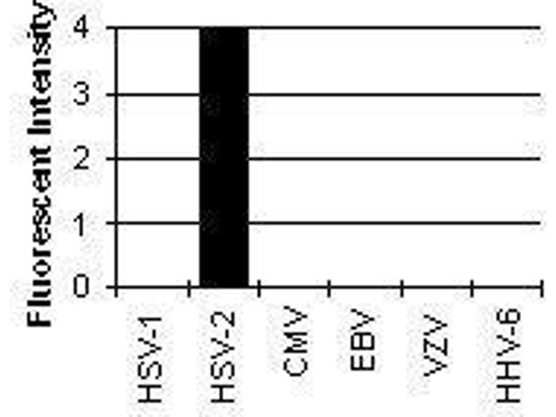 Immunofluorescence (IF) image for anti-HSV-2 ICP8 Major DNA Binding Protein (HSV-2 ICP8) antibody (ABIN265565)