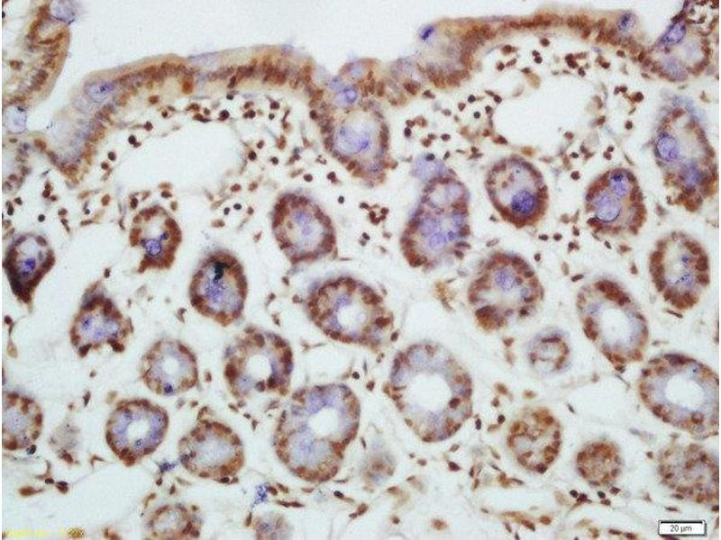 Immunohistochemistry (Paraffin-embedded Sections) (IHC (p)) image for anti-BIM antibody (BCL2-Like 11 (Apoptosis Facilitator)) (AA 70-111) (ABIN682873)