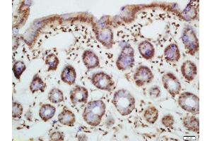 Immunohistochemistry (Paraffin-embedded Sections) (IHC (p)) image for anti-BCL2-Like 11 (Apoptosis Facilitator) (BCL2L11) (AA 70-111), (pSer87) antibody (ABIN682873)