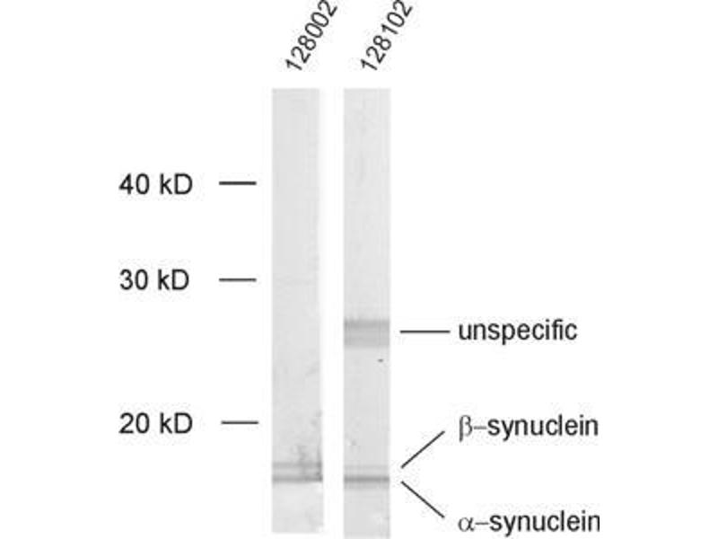 Western Blotting (WB) image for Synuclein, alpha (SNCA) protein (ABIN1742284)