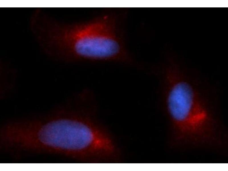 Image no. 2 for anti-Glutamine--Fructose-6-Phosphate Transaminase 1 (GFPT1) (AA 332-699) antibody (PE) (ABIN5568374)