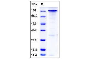 Image no. 1 for SRSF Protein Kinase 1 (SRPK1) (AA 2-655) protein (GST tag,His tag) (ABIN2005139)