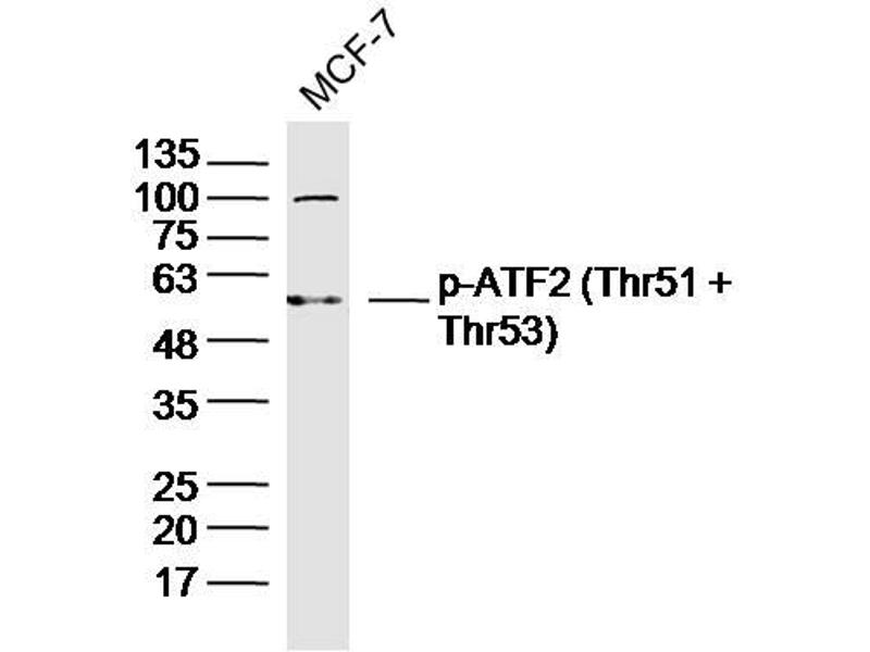 image for anti-Activating Transcription Factor 2 (ATF2) (pThr51), (pThr53) antibody (ABIN1713945)